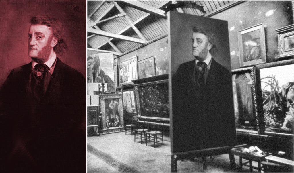 Vincent Durant Portrait Picture Painting - Vincent's Transfusion Blood